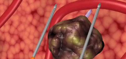 Terapia focal del cáncer de próstata por Electroporación. Tumores Urológicos. Marbella